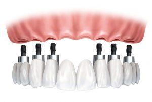 implanti