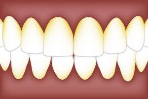 naslage na zubima