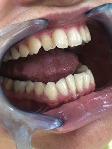 Ispravljanje položaja gornje desne dvojke pomoću keramičke fasete bez brušenja zuba 1