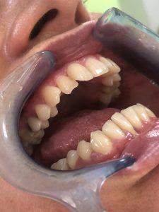 Ispravljanje položaja gornje desne dvojke pomoću keramičke fasete bez brušenja zuba 2