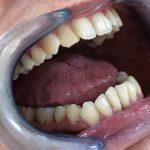 Ispravljanje položaja gornje desne dvojke pomoću keramičke fasete bez brušenja zuba 3