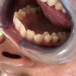 Ispravljanje položaja gornje desne dvojke pomoću keramičke fasete bez brušenja zuba 5