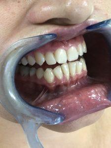 Ispravljanje položaja gornje desne dvojke pomoću keramičke fasete bez brušenja zuba 6