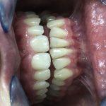Ispravljanje položaja gornje desne dvojke pomoću keramičke fasete bez brušenja zuba 7