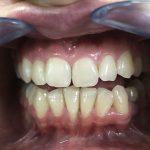 Ispravljanje položaja gornje desne dvojke pomoću keramičke fasete bez brušenja zuba 9