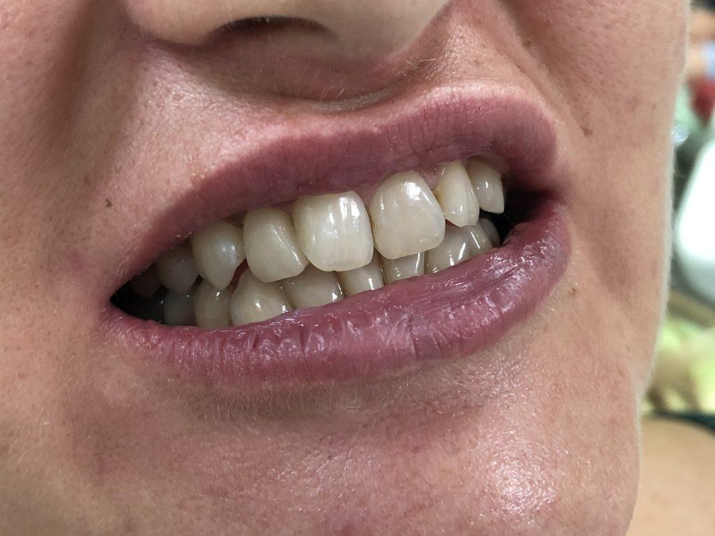 Ispravljanje položaja gornje desne dvojke pomoću keramičke fasete bez brušenja zuba 10