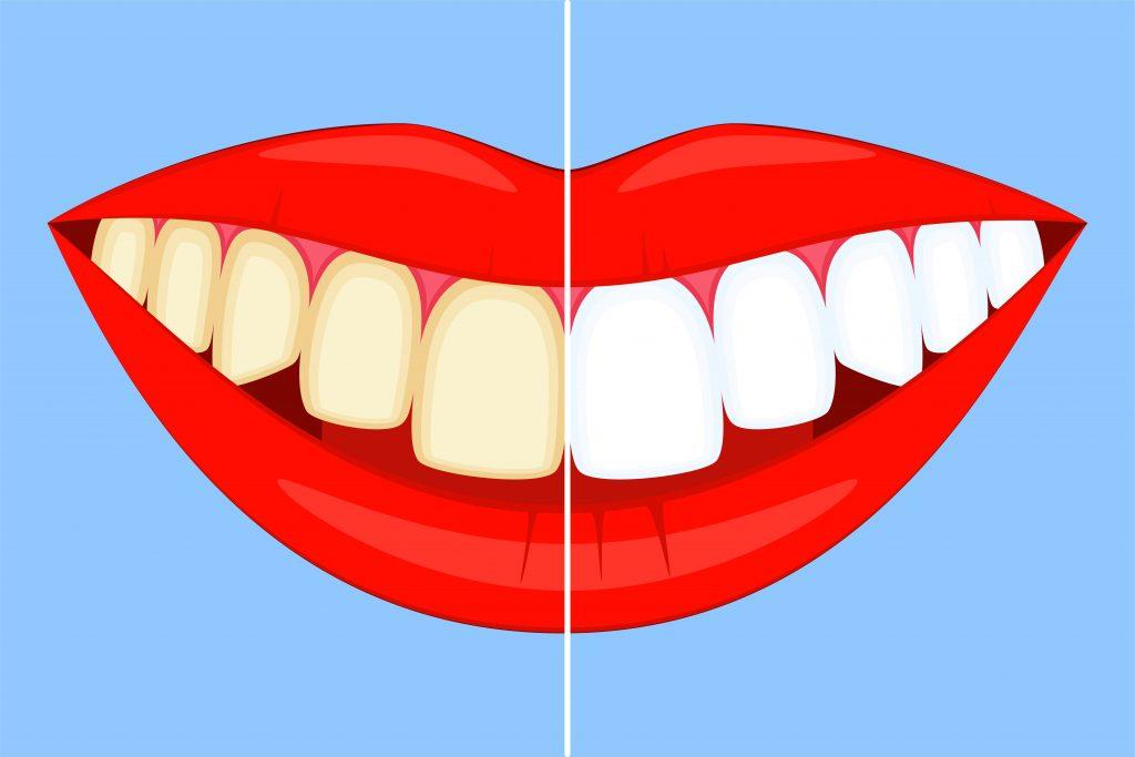 diskolorizacija zuba