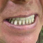 Fiksni protetski rad na implantima 1