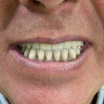 Fiksni protetski rad na implantima 4