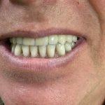 Fiksni protetski rad na implantima 3