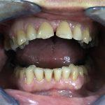 metalo-keramičke krunice dr vlada 2