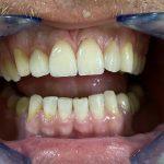 Keramičke fasete (probni MockUp, pre početka rada i gotov rad) 5