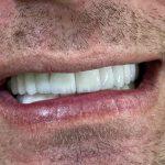 holivudski osmeh 2