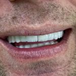 holivudski osmeh 3