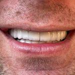 holivudski osmeh 4