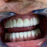 holivudski osmeh 1