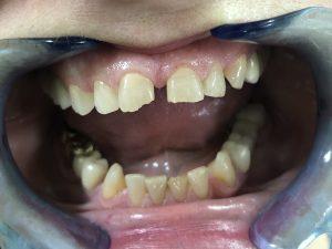 Smanjenje razmaka između zuba 2