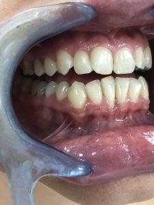 Ispravljanje položaja gornje desne dvojke pomoću keramičke fasete bez brušenja zuba 8